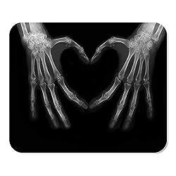 Mousepad Notizblock Büro-Röntgenstrahl-Knochen von den Händen, die das Zeichen Liebes-Herz-Wissenschafts-Körper-menschliche medizinische Medizin-Hauptschule Machen