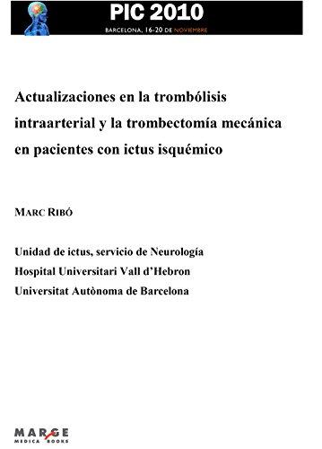 Actualizaciones en la trombólisis intraarterial y la trombectomía ...