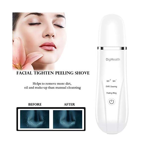 DigHealth Limpiador Facial Ultrasonico, Skin Scrubber Profesional con Función de Masaje Facial, Peeling Ultrasonico para Eliminación de la Espinilla y Limpiador de Poros, 4 Modos
