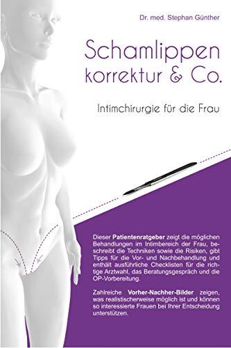 Schamlippenkorrektur & Co. - Intimchirurgie für die Frau