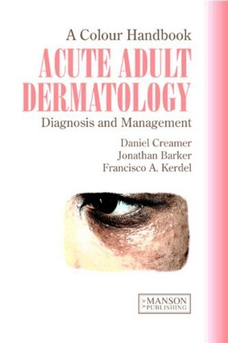 Acute Adult Dermatology: Diagnosis and Management: A Colour Handbook by Daniel Creamer (2011-02-04)