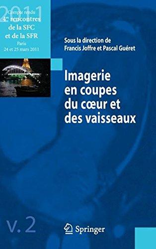 Imagerie en coupes du coeur et des vaisseaux: Compte-rendu des 4es rencontres de la SFC et de la SFR : Paris 24 et 25 mars 2011