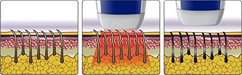 Veet Infini'Silk Pro IPL Hair Removal System