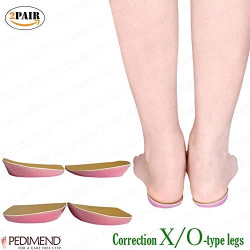 pedimendtm O/X-Bein Orthotic splayfoot Corrector-Pads (4Stück) 2pair | für bowlegs und Knie, für Männer und Frauen | Fußpflege