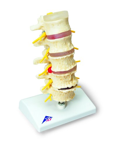 3b-scientific-a795-modelo-de-anatomia-humana-estadios-del-prolapso-del-cartilago-intervertebral