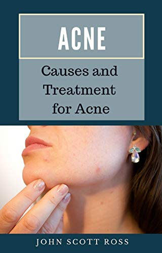 Acne: Causes and Treatment for Acne (English Edition)