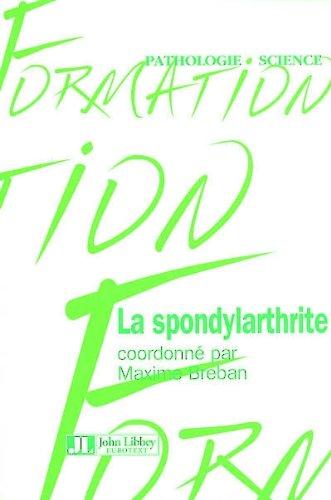 La Spondylarthrite