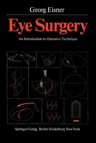 Eye Surgery: An Introduction to Operative Technique (English Edition)