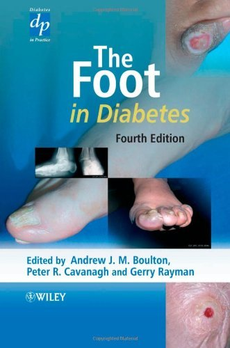 The Foot in Diabetes (Practical Diabetes) by Andrew J. M. Boulton (Editor), Peter R. Cavanagh (Editor), Gerry Rayman (Editor) (12-May-2006) Hardcover