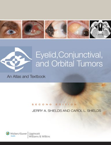 Eyelid, Conjunctival, and Orbital Tumors and Intraocular Tumors: An Atlas and Text