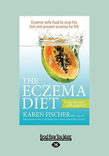 The Eczema Diet: Eczema-Safe Food to Stop the Itch and Prevent Eczema for Life (Large Print 16pt)