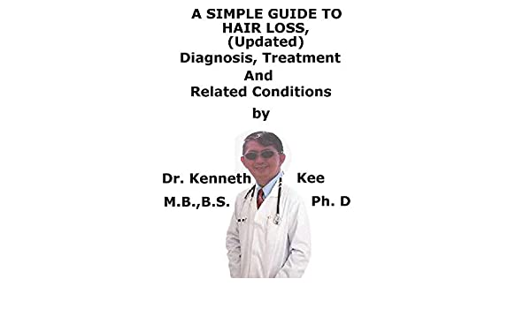 A Simple Guide To Hair Loss Updated (Alopecia), Diagnosis, Treatment