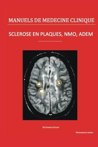 Sclérose en plaques, NMO, ADEM: Le point des connaissances médicales