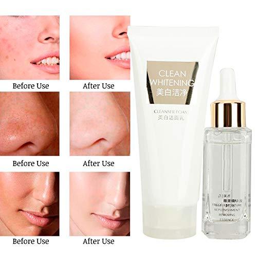 Gesichtspflege Set - Sommersprossen Entfernungs Serum & schäumende Gesichtsreinigung, Schrumpfen der Poren, Effektive Feuchtigkeitsversorgung, Anti-Narben-Behandlung, Gesichtsnarben 30ml -
