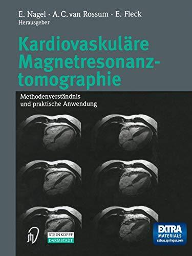 Kardiovaskuläre Magnetresonanztomographie: Methodenverständnis und praktische Anwendung