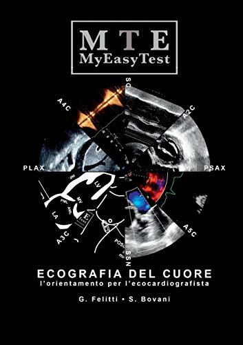 Ecografia del Cuore - MyEasyTest -