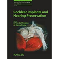 Cochlear Implants and Hearing Preservation: 67 (Advances