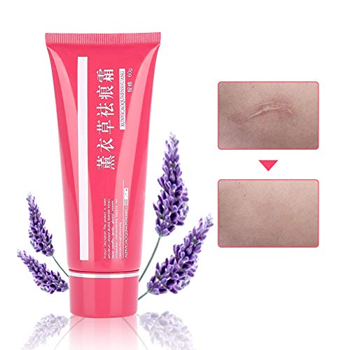 Stretch Marks Cream Narbencreme, Lavendel Körper Reparatur Salbe Dehnungsstreifen Reparatur Körper Haut Moisturzing, Kaiserschnitt Schwangerschaft Narben Reparatur Aftercare Hautpflege