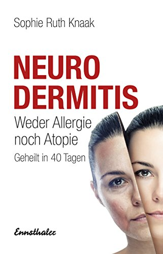 Neurodermitis: Weder Allergie noch Atopie - Geheilt in 40 Tagen -