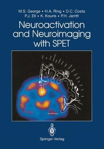 Neuroactivation and Neuroimaging with SPET (English Edition) -
