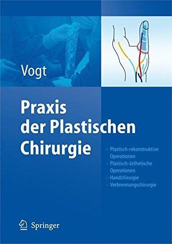 Praxis Der Plastischen Chirurgie: Plastisch-Rekonstruktive Operationen - Plastisch-Asthetische Operationen - Handchirurgie - Verbrennungschirurgie by Unknown(2007-11-01)