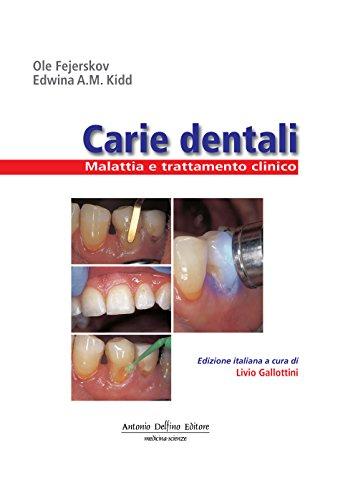 carie-dentali-malattia-e-trattamento-clinico