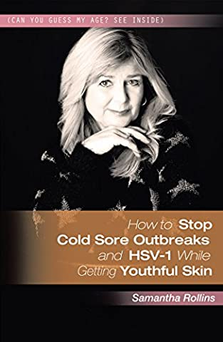 How to Stop Cold Sore Outbreaks and Hsv-1 While Getting