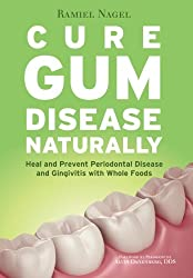 Cure Gum Disease Naturally: Heal Gingivitis and Periodontal Disease with Whole Foods