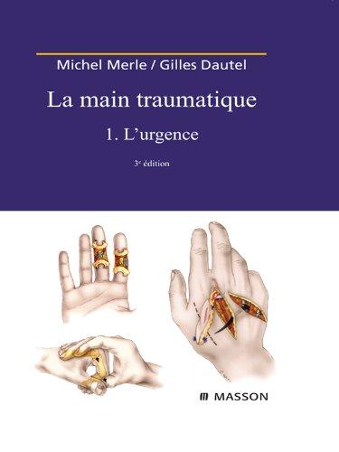 La Main traumatique. Tome 1. L'Urgence par Michel Merle