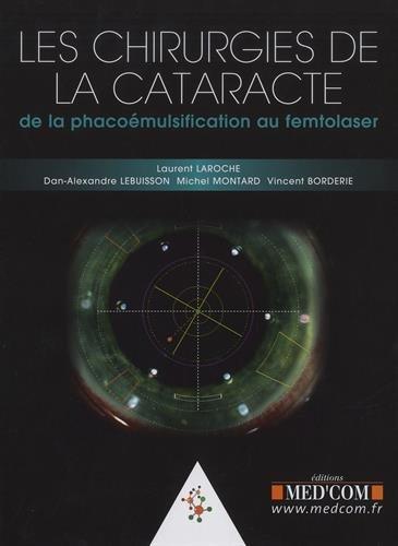 Les chirurgies de la cataracte : De la phacoémulsification au femtolaser