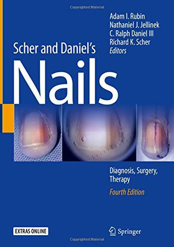 Scher and Daniel's Nails: Diagnosis, Surgery, Therapy