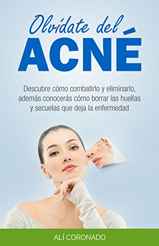 Olvídate del Acné: Descubre cómo combatirlo y eliminarlo, cómo borrar las huellas y secuelas que deja la enfermedad por Alí Coronado