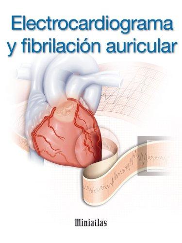 Electrocardiograma (ECG) y Fibrilación Auricular - Miniatlas por Dr Luis Raúl Lépori