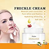Best Treatment For Melasma - Shrewas Remove Dark Spots Freckle Face Whitening Cream Review