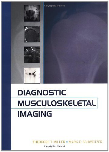 Diagnostic Musculoskeletal Radiology 1st Edition by Miller,Theodore, Schweitzer,Mark (2004) Hardcover