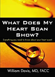 What Does My Heart Scan Show?: Everything You Need to Know About Your Heart Scan!