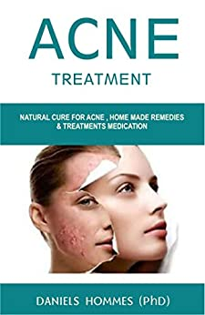 ACNE TREATMENT: Natural Cure For Acne , Home Made Remedies & Treatments Medication by [HOMMES md (phD), DANIELS ]