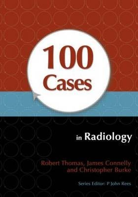[100 Cases in Radiology] (By: Robert Thomas) [published: February, 2012]