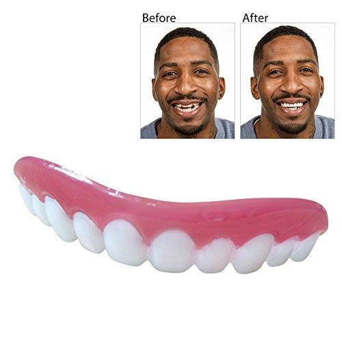Blaward Kosmetische Zähne, Perfekte Lächeln Zähne Zahnersatz Schöne Smile Zahn Makeover Veneers