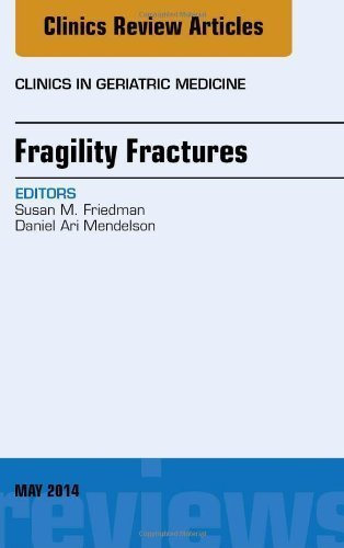 Fragility Fractures, An Issue of Clinics in Geriatric Medicine, 1e (The Clinics: Internal Medicine) by Daniel A Mendelson MS MD (2014-04-24)