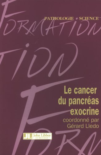 Le Cancer Du Pancreas Exocrine