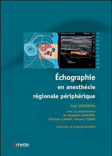 Echographie en anesthesie régionale périphérique (1DVD) par Eryk Eisenberg