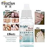 Best Fungal Onychomycosis Fungal Nail Treatment Toe Nail Serum Repair Fungus Foot Nail