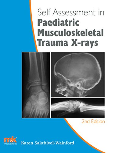 Self-assessment in Paediatric Musculoskeletal Trauma X-rays (Self-Assessment in X-rays) by [Sakthivel-Wainford, Karen]