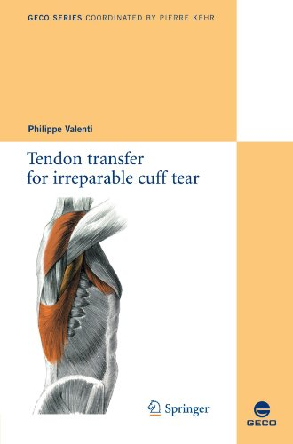 Tendon transfer for irreparable cuff tear