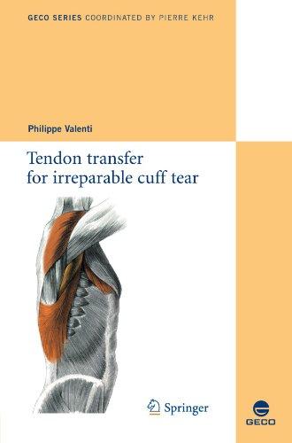 Tendon transfer for irreparable cuff tear par (Broché - Nov 11, 2010)