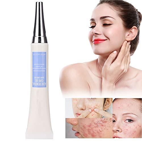 Sommersprossencreme, 20g Behandlung Akne-Entfernungscreme Anti-Comedo Repairing Gel Anti-Falten-Whitening Feuchtigkeitscreme