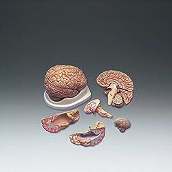 cerebro con arterias