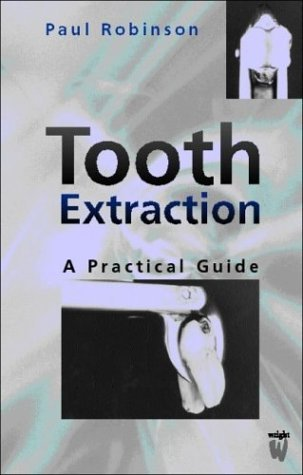 By Paul D. Robinson PhD BDS MBBS FDS Tooth Extraction: A Practical Guide, 1e [Paperback]