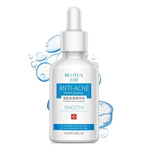 Allbesta Anti-Acne Serum Pore Care Essence Acne Remove Repair Smooth Skin Hydrate Moisturize Nourishing Control Oil